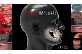 Tilted implants - Immediate esthetic and function in compromised patients