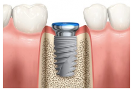 Excellence in Surgical & Prosthetic Implant Dentistry